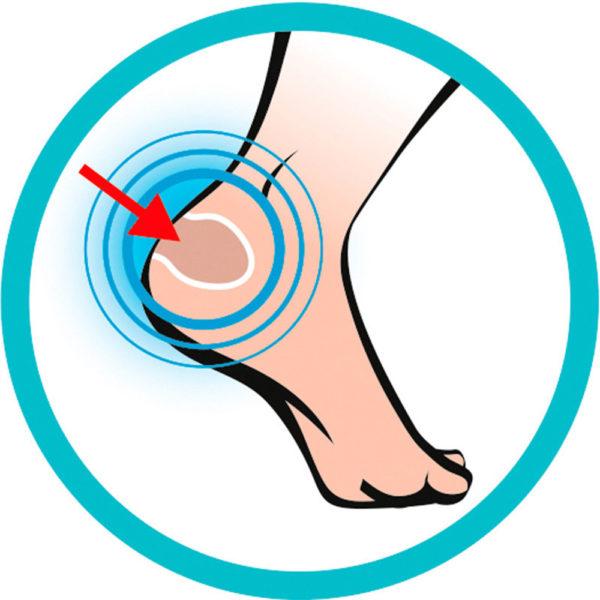 Gel-Sidas-Foot-Protector3